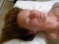 Julia Hancock, Facial Rejuvenation Acupuncture