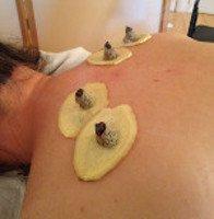 Sanfu Moxa for Natural Immunity